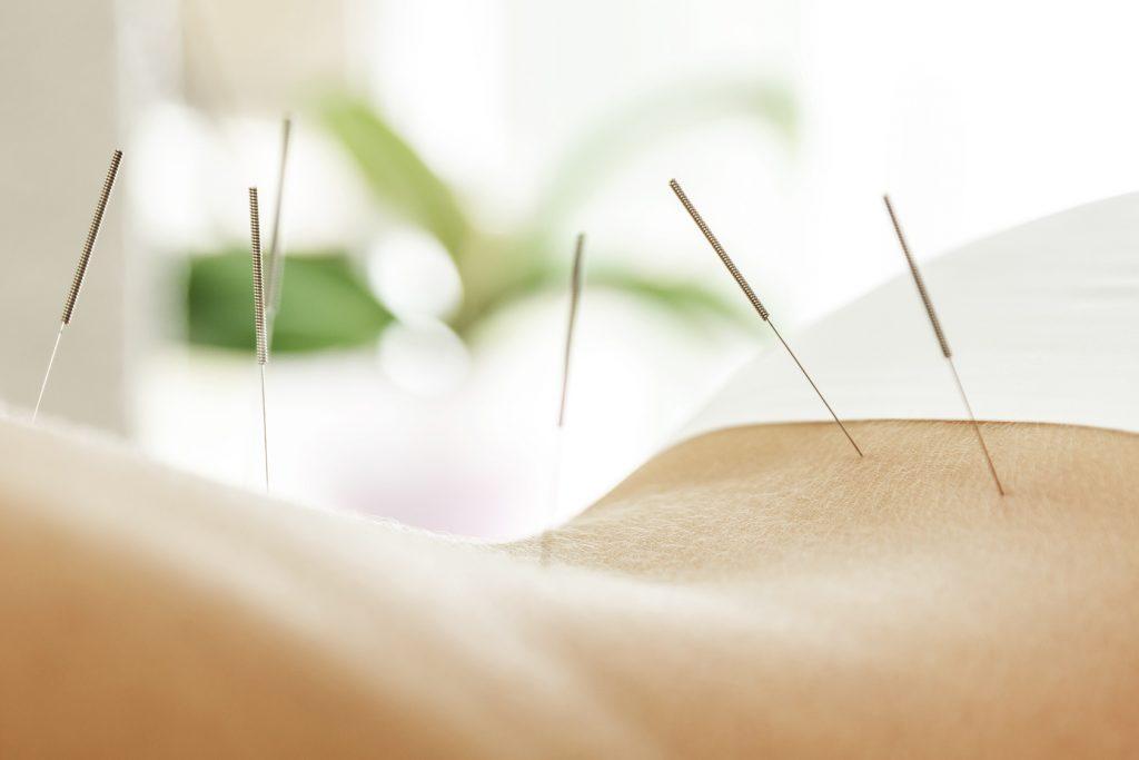 Akupunktur 1