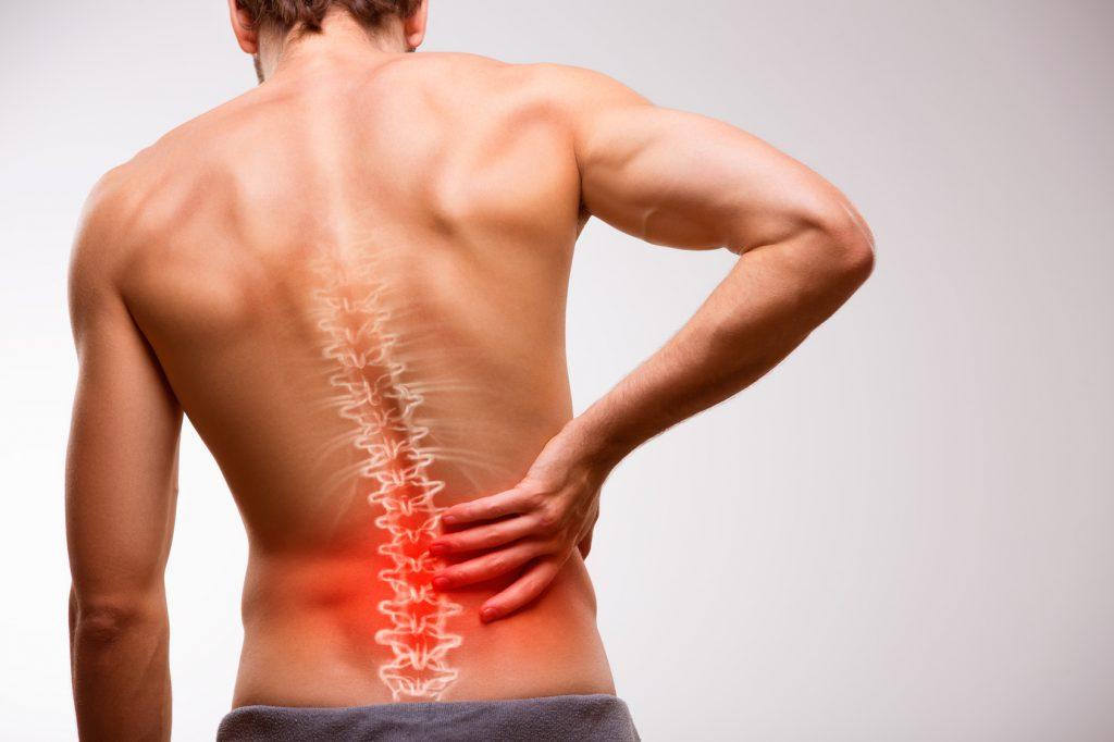 Rückenschmerzen 1