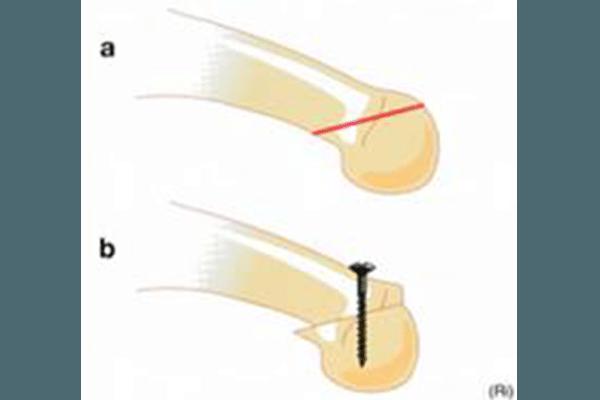 Metatarsalgie 1